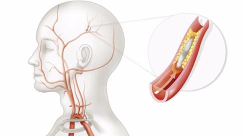 Ictus Cerebri